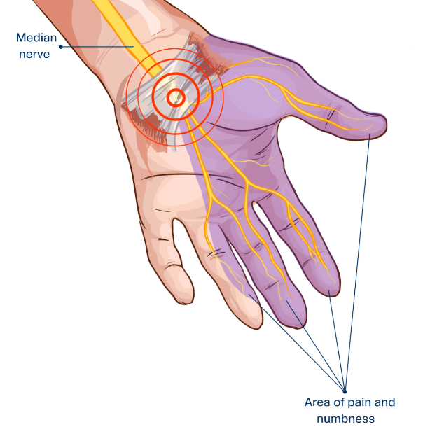 hand showing median nerve and carpal tunnel syndrome symptoms
