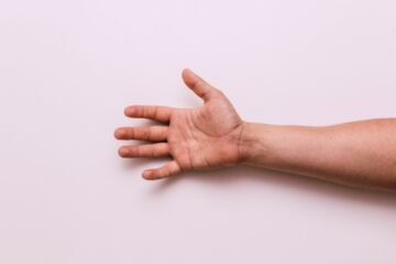 carpal tunnel syndrome picture