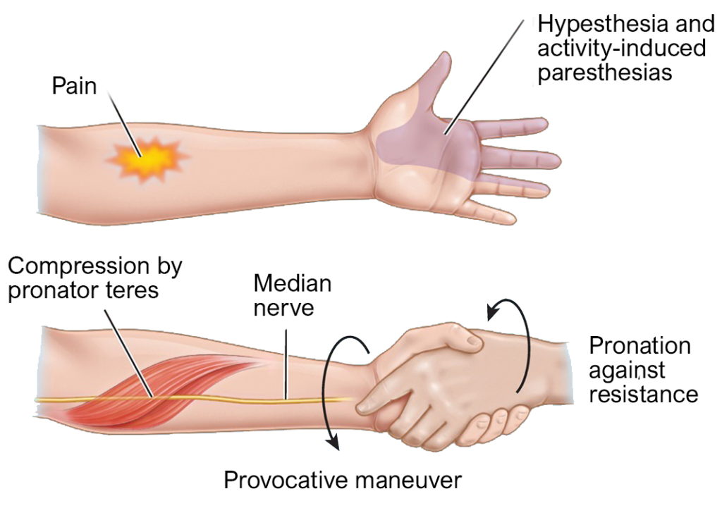 diagram pronator teres syndrome and median nerve entrapment and symptoms